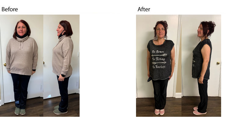 nj weight loss expert, dr supervised